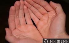 Tướng lòng bàn tay nói gì về bạn?